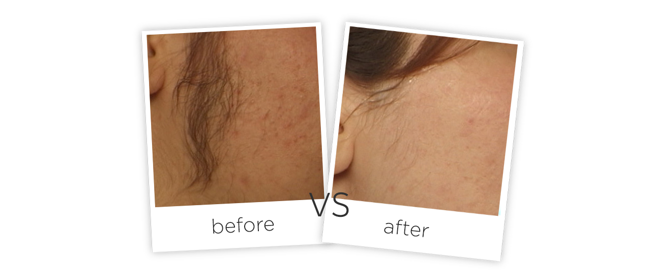 Medical Portable Pulse Laser Hair Removal Machine Before&After