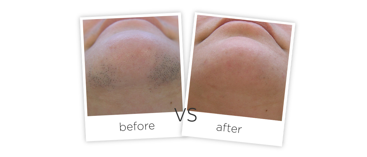 Medical Portable Pulse Laser Hair Removal Machine Treatment results