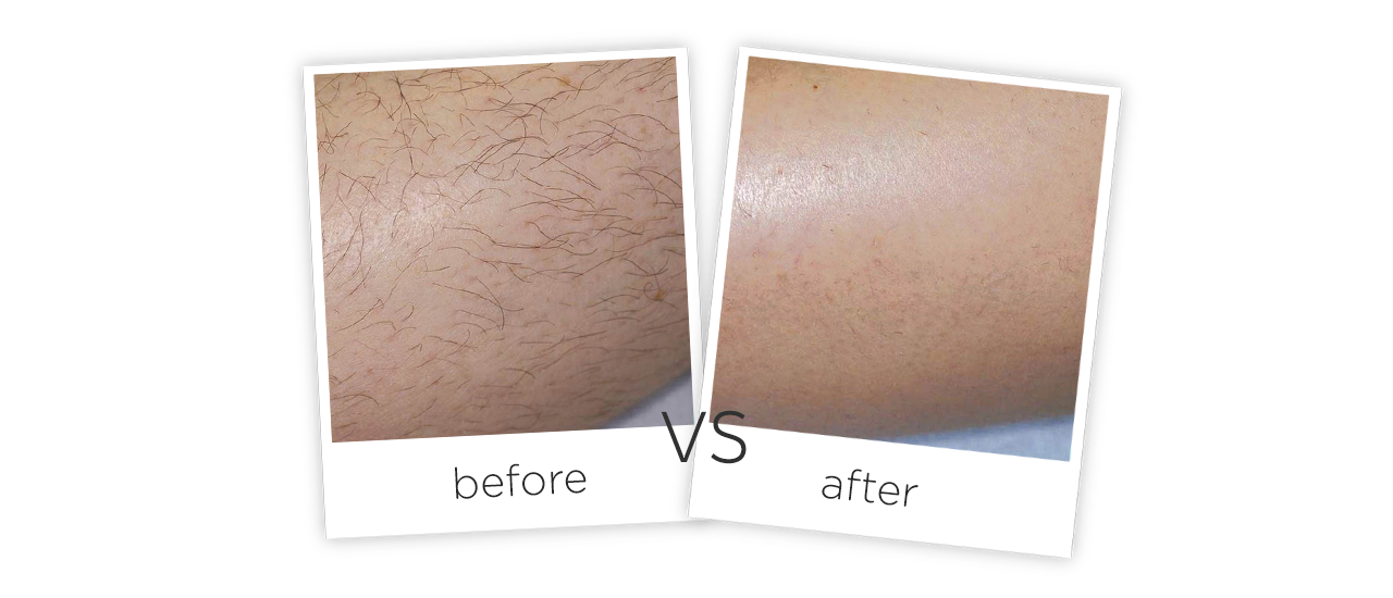 1064nm Long pulse laserTreatment Before&After