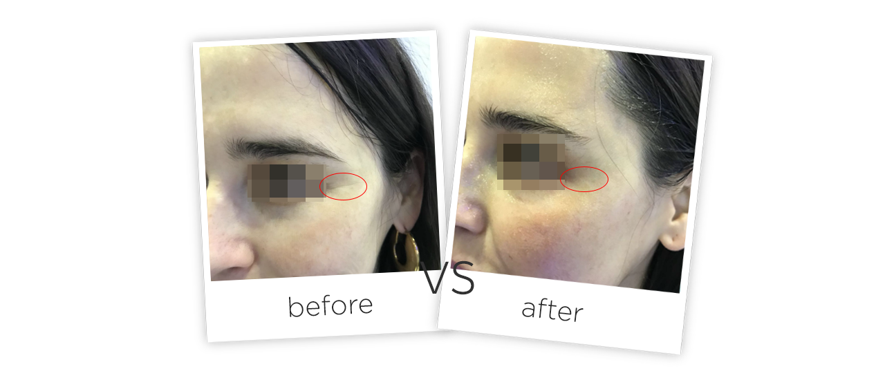 4D Skin Lifting Before&After