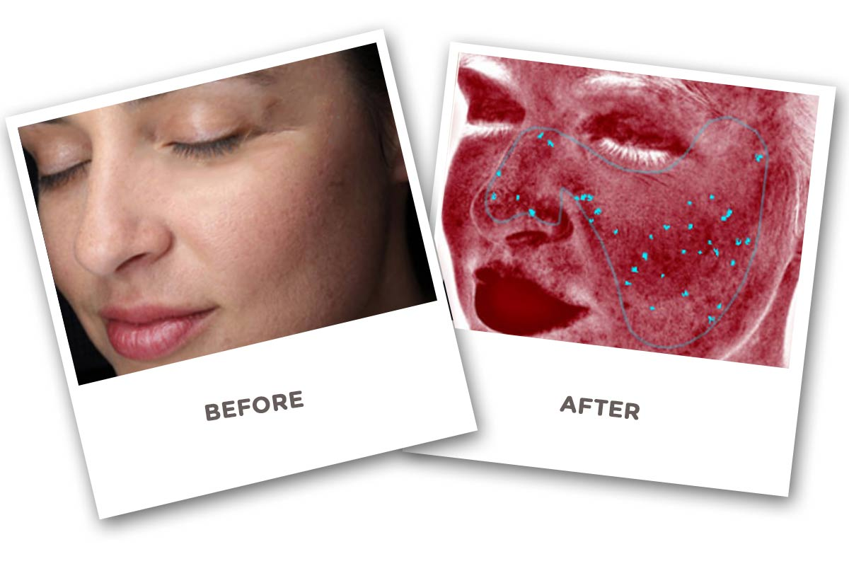 Face Skin Analyzer Before and After