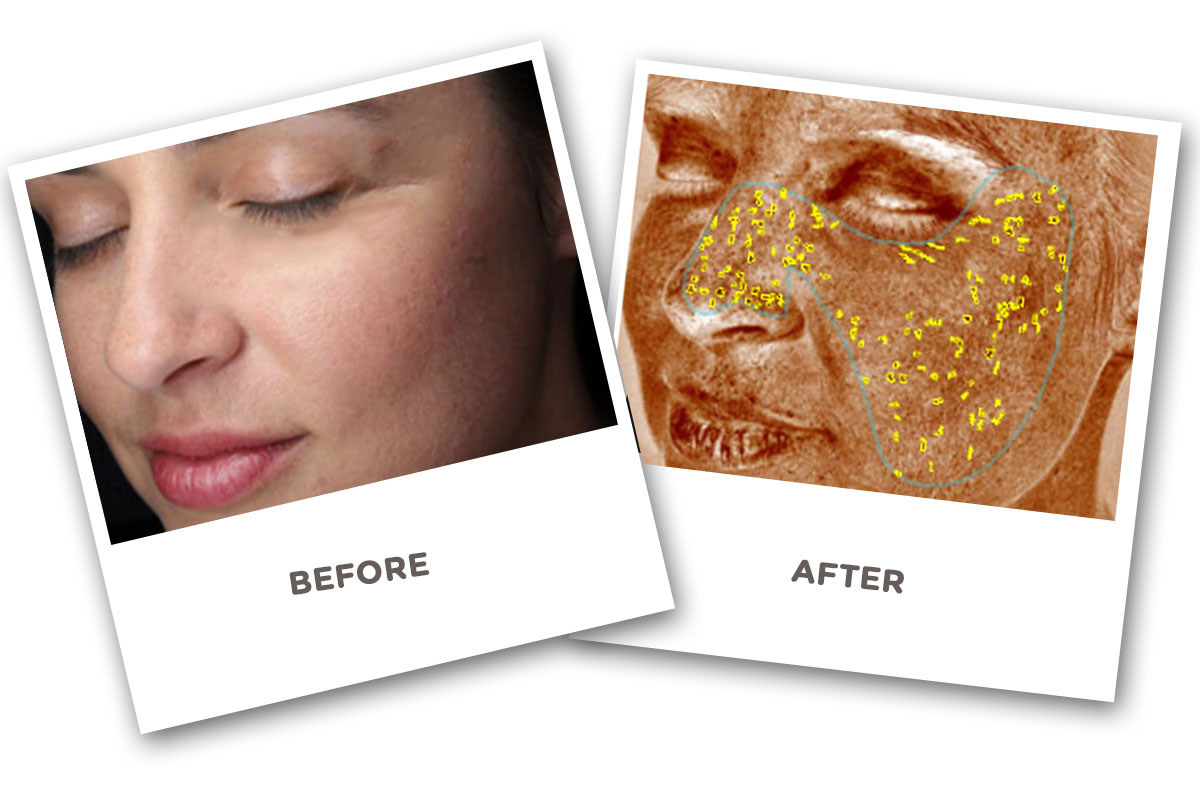 Skin Analyzer Before and After
