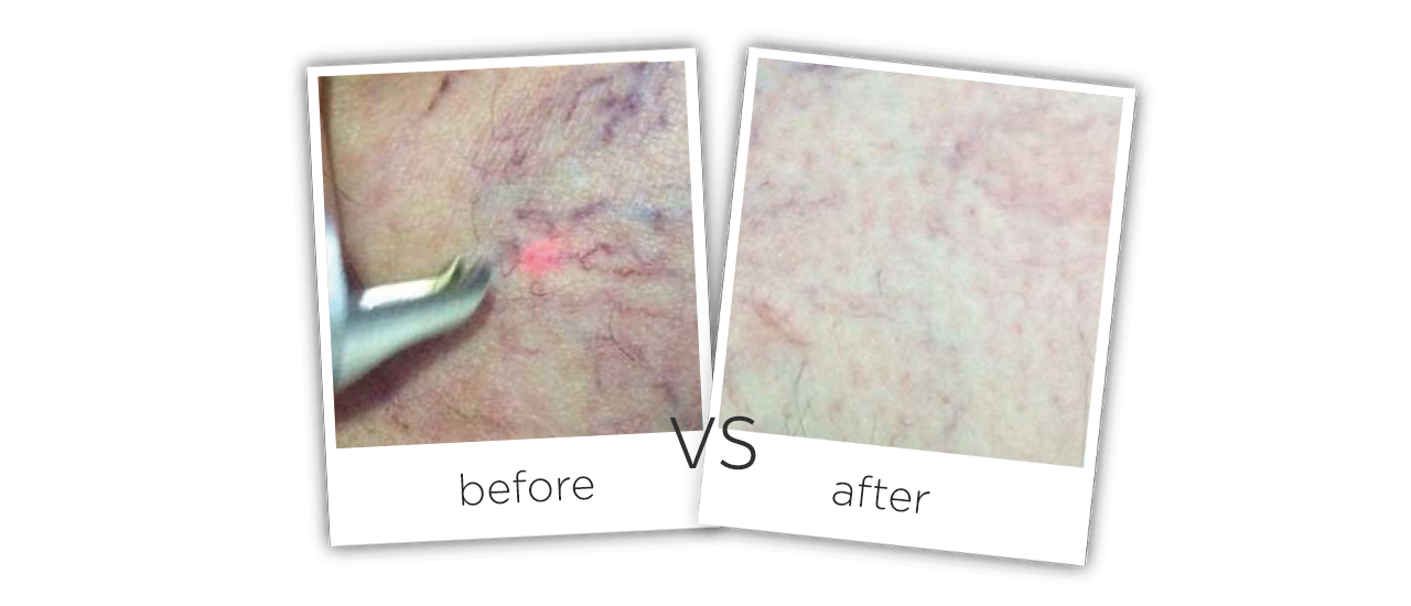 Treatment  /  Spider Veins Removal Before&After