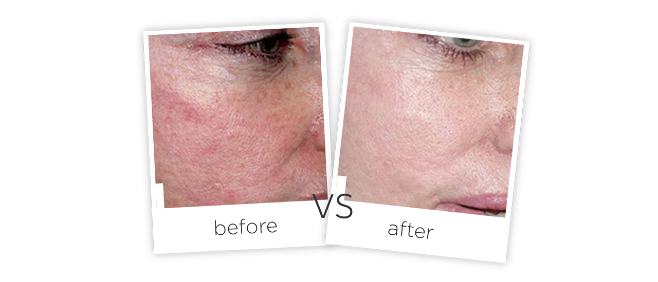 Treatment  /  Spider Veins removal Treatment results