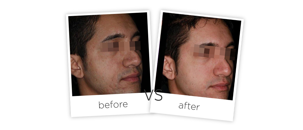Treatment  /  Acne Scars TreatmentBefore&After