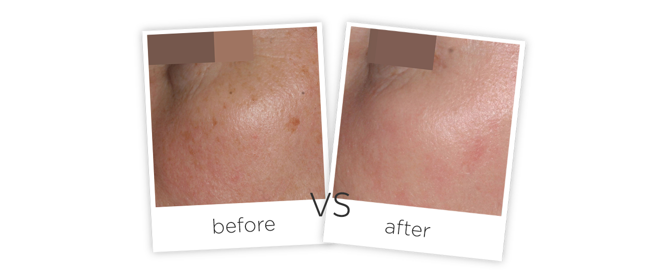 Treatment  /  Acne Scars TreatmentTreatment results
