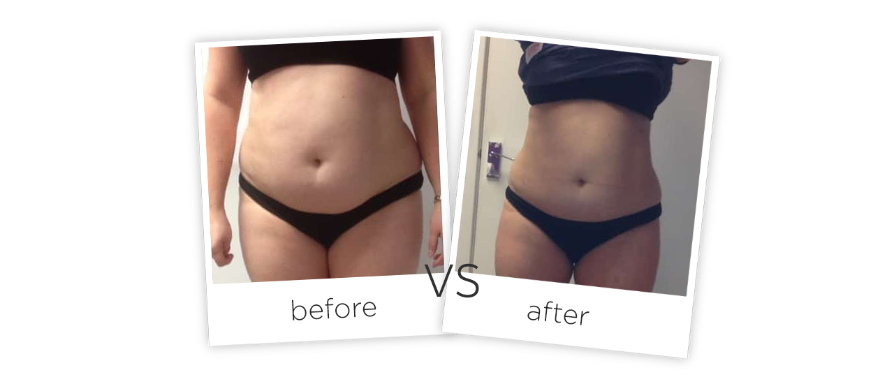 Treatment  /  Body Contouring Before&After