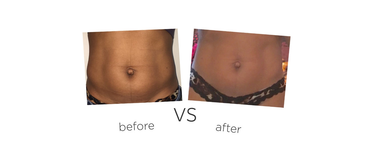 Treatment  /  Body Contouring Treatment results