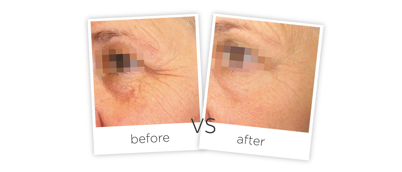 Household Facial Hifu Wrinkle Removal Machine Treatment Before&After