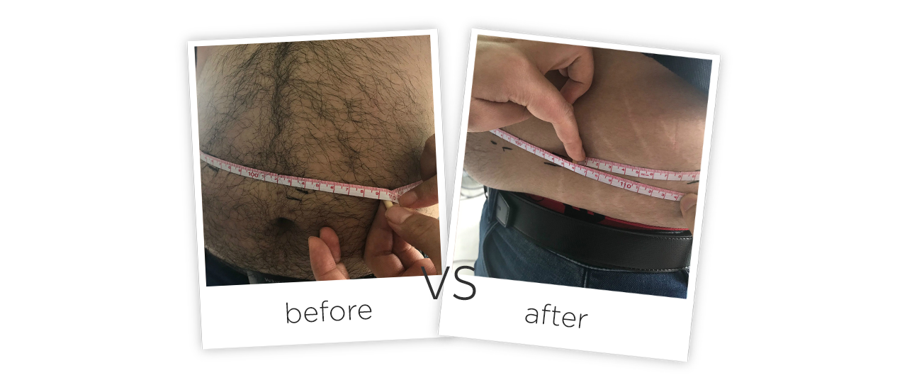 Laser Shape Body Slimming system Before&After