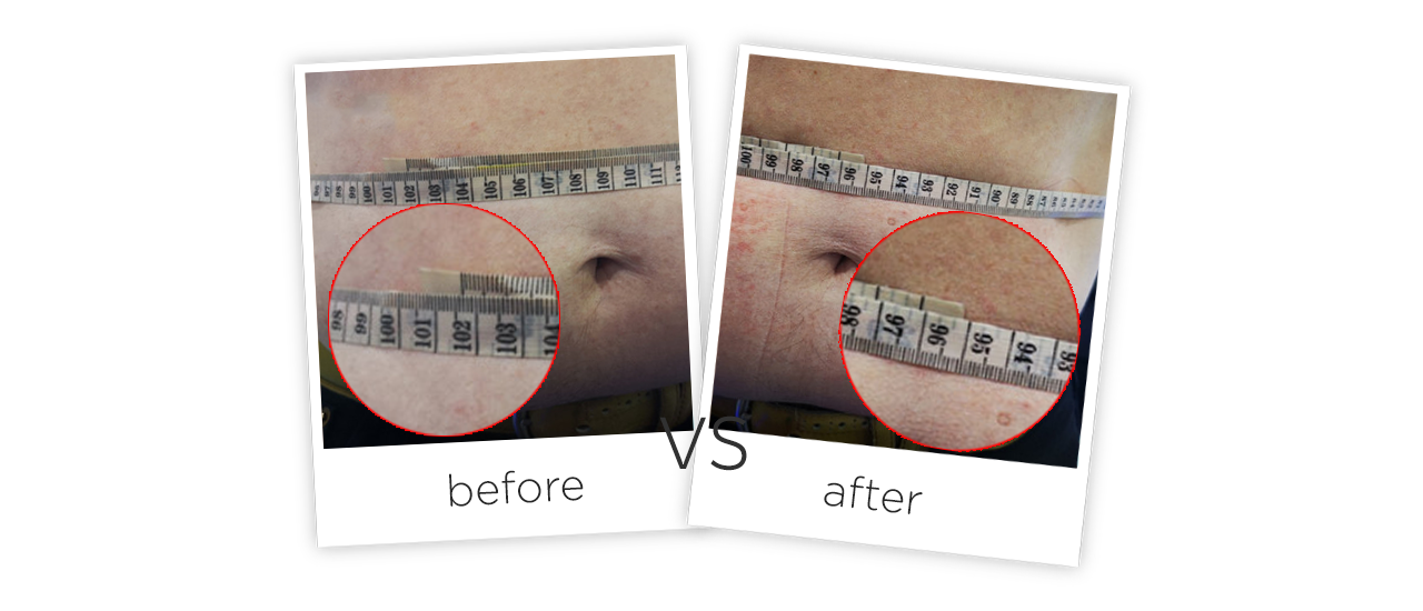 Laser Shape Body Slimming system Treatment results