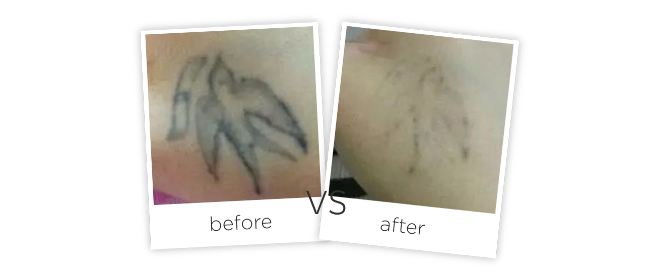 Portable Picosecond Laser Tattoo Removal Equipment for Beaut Before&After