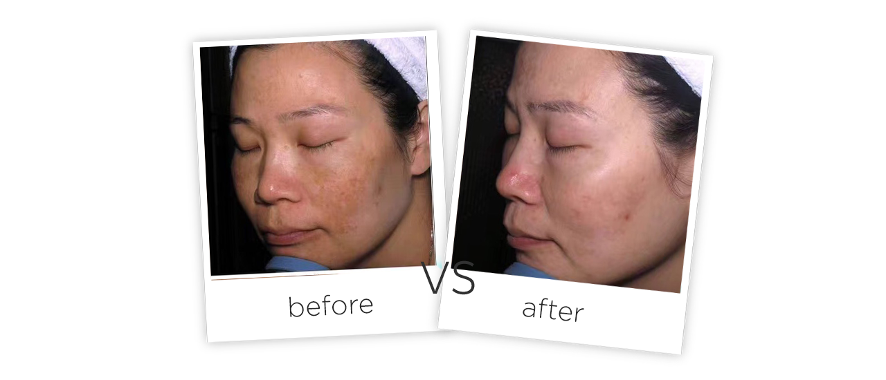 Picosecond Laser pigment therapy PS10Treatment results