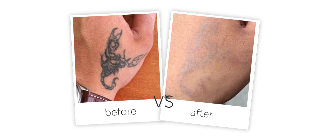 Portable Picosecond Laser Tattoo Removal Equipment for Beaut Treatment Before&After