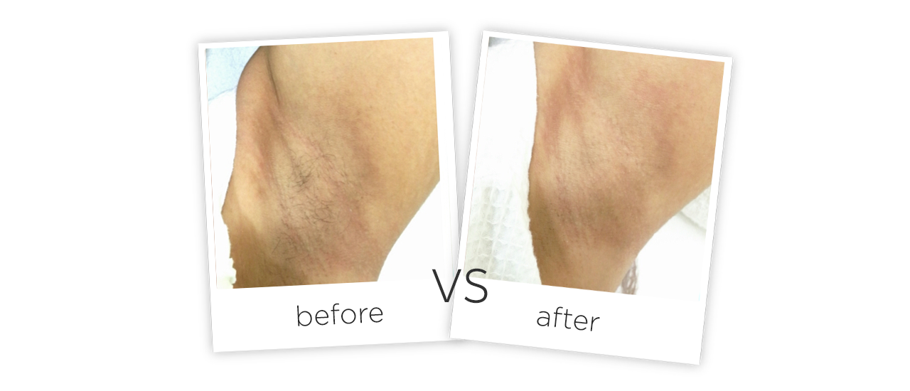 photos before and after treatment of Legs Diode Laser Hair Removal