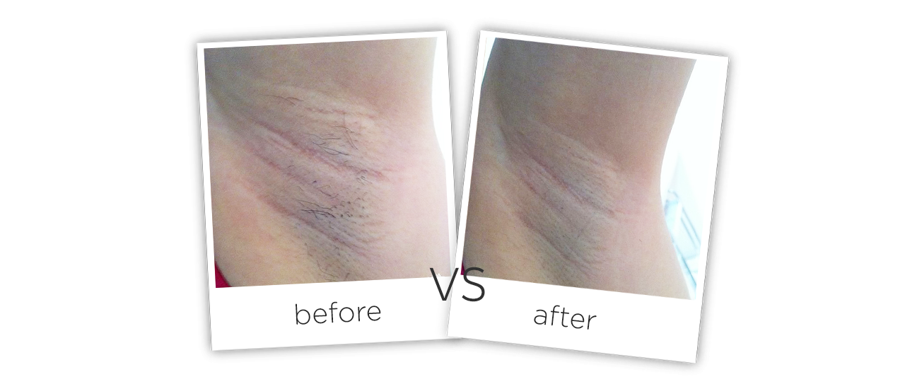 photos before and after treatment of Armpit Diode Laser Hair Removal