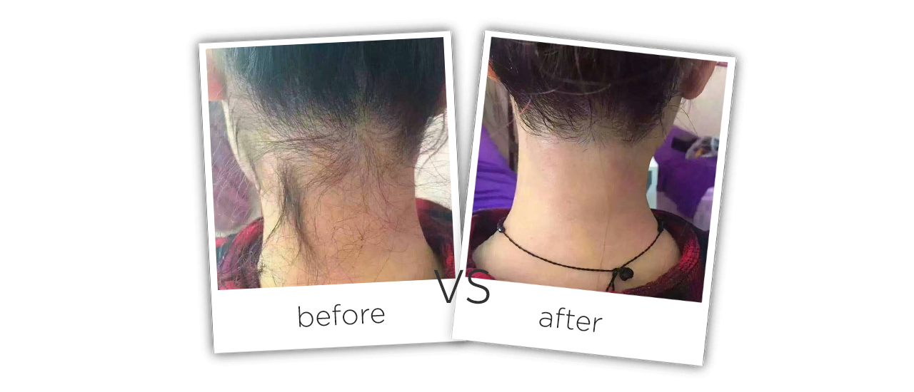 photos before and after treatment of Neck Diode Hair Removal
